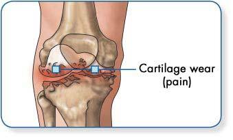 ízületek osteoarthrosisának kezelése